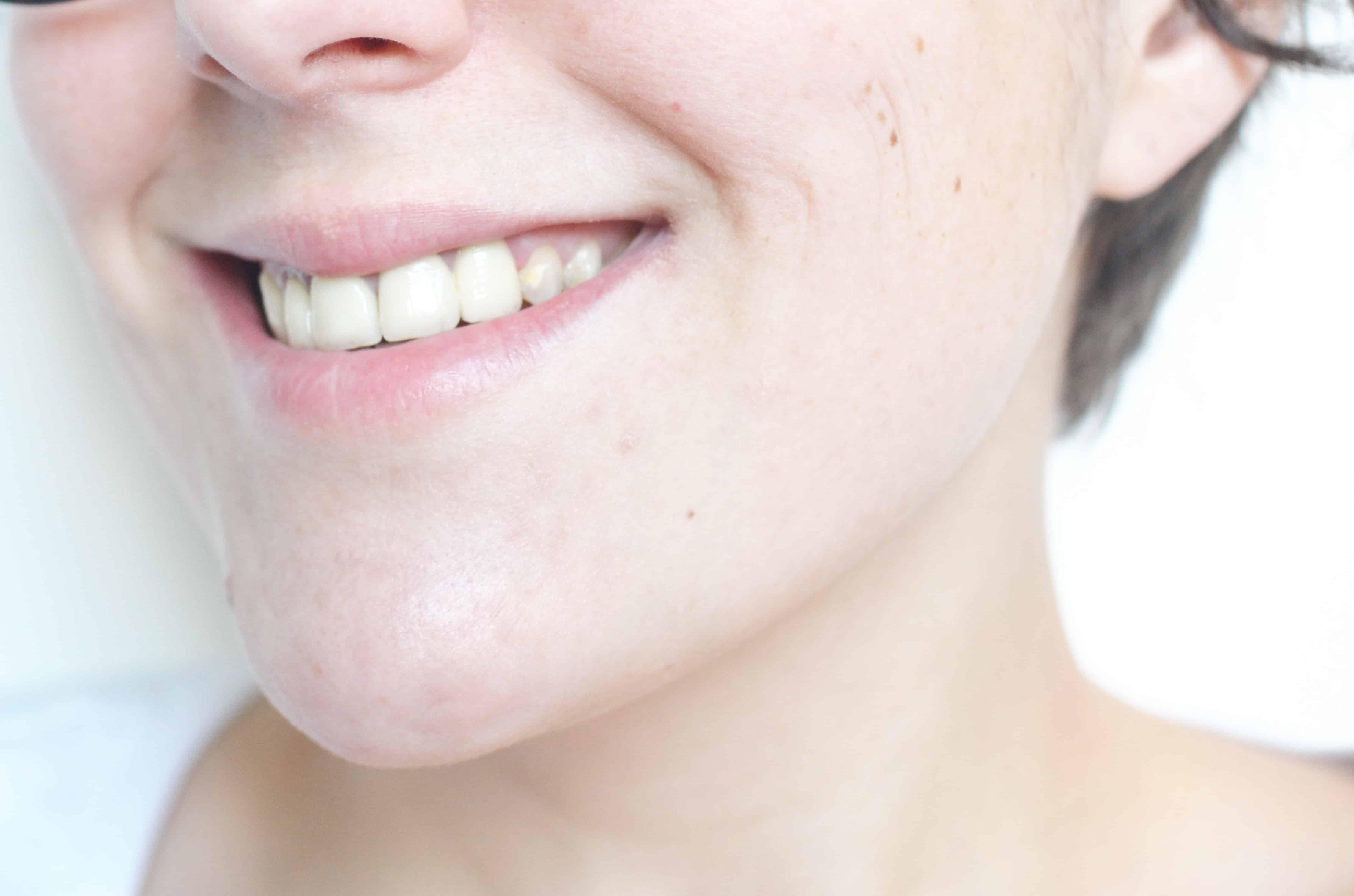 sourire propre